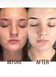 Natural Glow, Natural Skin, Face Peel, Chemical Peel, Clear Skin, Beauty Skin, Facial, How To Remove, Nu Skin