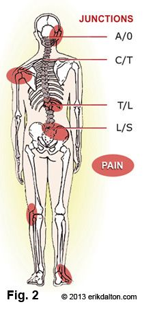 Leg length discrepancy, or as it has been alternatively termed, the short leg syndrome, is by far the most important postural asymmetry. Studio Pilates, Psoas Release, Scoliosis Exercises, Muscle Imbalance, Psoas Muscle, Rotator Cuff, Sports Massage, Short Legs, Anatomy And Physiology