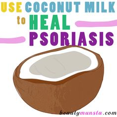 Coconut milk is a God-send when it comes to healing psoriasis but surprisingly, not many know about it! Discover the benefits of coconut milk for psoriasis, remedies and how to use, right here! Science tells us that psoriasis is an ailment where the skin cells regenerate at a rapid rate, faster than the body can …