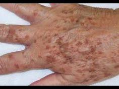 Cómo eliminar las manchas de las manos (remedio casero)