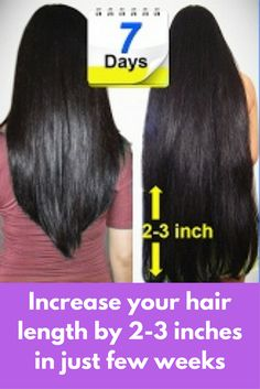 Increase your hair length by 2-3 inches in just few weeks Every woman dream to get long beautiful hair but most of the time it requires too much patience but today I will tell you two natural remedies that can increase your hair length by 2-3 inches in just 1 week Remedy 1 – Onion Juice and Coconut oil Remedy 2 – Aloe vera gel and …