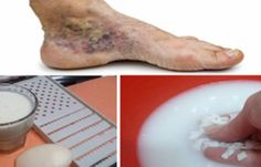 Magical Recipe for Varicose Veins and Thrombosis with Only 2 Simple Ingredients. When swollen varicose veins prevent blood flow to the heart, blood starts to. Varicose Vein Removal, Varicose Vein Remedy, Varicose Veins, Foot Remedies, Health Remedies, Magic Recipe, Natural Home Remedies, Natural Treatments, Wonderful Recipe