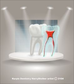 Tooth in the spot light art for Kurpis Dentistry