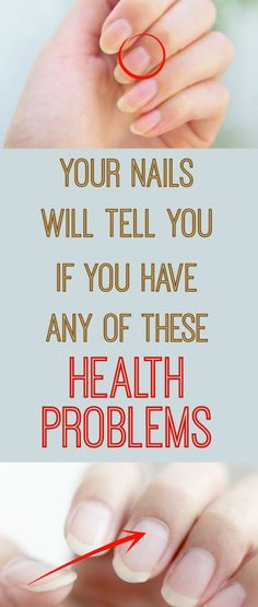Your #Nails Will Tell You If You Have Any Of These #Health #Problems !