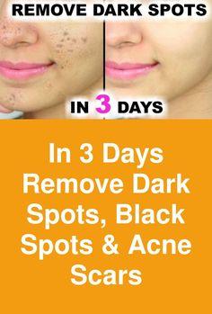 In 3 Days - Remove Dark Spots, Black Spots & Acne Scars Black Spot, All Black, Scar Remedies, How To Remove, How To Apply, Beauty Hacks, Beauty Tips, Acne Scars, Dark Spots