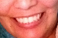 Nooooo more braces!!!!!
