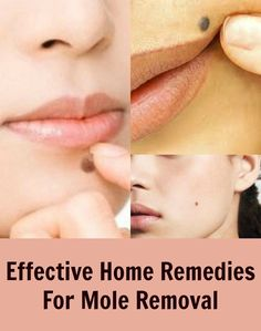 Effective Home Remedies For Mole Removal