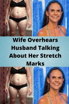 #Wife #Overhears #Husband Talking #About Her Stretch #Marks
