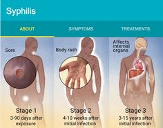 Syphilis Symptoms Transmission Syphilis Symptoms Transmission Syphilis Symptoms Transmission Syphilis Symptoms Transmission