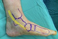 Posterior Tibial Tendon Dysfunction-OrthoInfo - AAOS