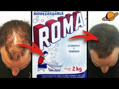 Coffee Hair Dye, Forever Living Products, Tips Belleza, Brunette Hair, Dyed Hair, Facial, Hair Beauty, Skin Care, Youtube