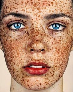 Freckles, a portrait series by photographer Brock Elbank (previously featured), celebrates the beauty and uniqueness of freckled individuals and explores the… Beautiful Freckles, Gorgeous Redhead, Gorgeous Eyes, Redheads Freckles, Freckles Girl, Freckle Face, Redhead Girl, Belleza Natural, Ginger Hair