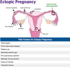 An ectopic pregnancy is when implantation of the gestational sac occurs outside of the uterus. The most common location for an ectopic pregnancy is the fallopian tubes. It can also occur in the interstitial or cornual portion of the uterus (2%), intraabdominally (1.5%), on the ovary (0.1%)and or within the cervix (0.1%). A history of a previous ectopic pregnancy is regarded as the greatest risk factor. Also previous tubal surgery and in utero diethylstilbestrol (DES) exposure.