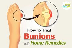 Did you know the word 'bunion' comes from the Greek word for turnip? Once you understand bunions, you'll get the connection. A bunion, medically known as hallux valgus, is an. Bunion Remedies, Plantar Fasciitis Remedies, Gout Remedies, Cold And Cough Remedies, Headache Remedies, Holistic Remedies, Skin Care Remedies, Natural Home Remedies, Health Remedies
