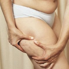 10 Most Efficient Home Remedies For Cellulite Removal