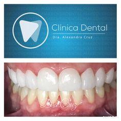 EN PROCESO  Comenzando la mágica transformación de una sonrisa. Lentes maxilares ya cementados  para proceder a comenzar con la parte mandibular. @dracruz #dentalmakeover #smiledesign #veneers #porcelana by dracruz Our Dental Veneers Page: http://www.lagunavistadental.com/services/cosmetic-dentistry/veneers/ Other Cosmetic Dentistry services we offer: http://www.lagunavistadental.com/services/cosmetic-dentistry/ Google My Business: https://plus.google.com/LagunaVistaDentalElkGrove/about Our…