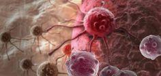 """فجر بروفسور أمريكي، يمارس مهنة الطب، مفاجأة من العيار الثقيل، مؤكدا أن العلاج الكيميائي لا ينجح في علاج مرض السرطان بل هو مجرد خدعة.  وقال البروفسور السابق في الفيزياء والفيزيولوجيا الطبية ويمارس مهنة الطب في بيركلي، هاردن جونز، بحسب موقع """"noonpresse"""" إن العلاج الكيميائي لا ينجح في معالجة السرطان وأنه خدعة مموهة جيداً من قبل صناعات السرطان. وهدفها جمع الأموال"""