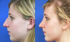 A clearly successful rhinoplasty likely left this woman with a more positive and confident self-image.