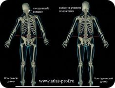 ✔ РАЗНАЯ ДЛИНА НОГ В обществе бытует ложное данное, что бывает такая болезнь, как разная блина ног. Это совершенно неверно. У человека никогда не бывают ноги разной длины, если это ни какая-нибудь механическая травма.  С рождения ноги у человека совершенно одинаковой длинны.  Точнее называется этот недуг - разная высота ног. Отчего возникает разница в высоте ног? Дело в том, что когда у человека скошен таз, то есть он имеет наклон, то ноги, соответственно, одна поднимается выше, а другая…