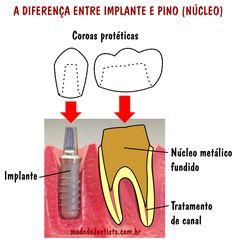 A diferença entre implante e pino (núcleo)