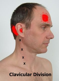 Common headache referral pattern from trigger points in sternocleidomastoid muscle.