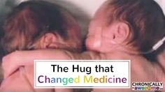 """Their hug is now famously known as """"The Rescuing Hug"""" not only saved the twin's life, but also changed the way that we take care of premature babies forever by highlighting the amazing healing power of touch."""