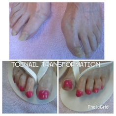 Example of toenails that are in need of routine foot care. Free edges are too long and several nail plates were thick due to a combination of prescriptions and aging process. #columbiasc #naturalfootcare #1720devonshire #middleburgplaza