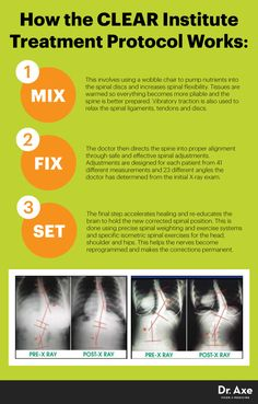 Scoliosis exercises CLEAR Institute protocol - Dr. Axe