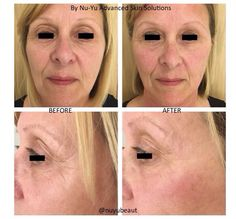 Fantastic results with CACI Non-Surgical Facelift & Dermatude UK Meta Therapy after only 1 treatment dont you agree? #10yearsyounger #instantlyageless If you would like to acheive these results too get in touch with Jill Nu-Yu Advanced Skin Solutions #instantlyageless #10yearsyounger #firmer #tighterskin #brighter #skinhealth #nonsurgical #celebrityfacial #antiageing #wrinkles #jowls #resultsdriven #selondon #kent