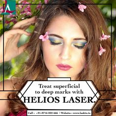 Pave way to a glowing and even skin with Helios laser treatment. Say bye-bye to all the pigmentation problems like freckles, melasma, acne marks etc with this ultra advanced technology with no downtime. Call to book your Helios Laser session today. Dandruff Solutions, Getting Rid Of Dandruff, Say Bye, Acne Marks, Aesthetic Clinic, Shiny Hair, Freckles, Hair Care, Hair Care Tips