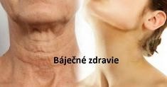 One of the first signs of aging is a sagging skin on the neck. The thing is the neck muscles or platysma are not attached to any bones or ligaments that Sagging Skin, Atkins Diet, The Thing Is, Look Younger, Just Amazing, Simple Way, Health And Beauty, Health Fitness, Hair Beauty