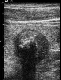 Follicular Neoplasm: Longitudinal sonogram of the thyroid shows a solid, homogeneous, egg-shaped nodule with a thin capsule.