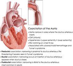 #Coarctation of the #Aorta