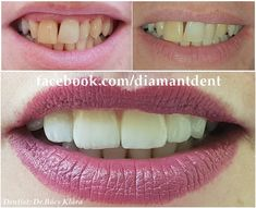 New Smile, new life 🙂 Have a Bright smile! Dental Bridge,Crowns Diamant Dent New Smile, new life :] Have a Bright smile! Teeth Implants, Dental Implants, Smile Dental, Smile Teeth, Dental Bridge Cost, Teeth Whitening Remedies, Dental Crowns, Cosmetic Dentistry, Mouthwash