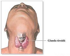 """Tiroida este o glandă a organismului uman cu influențemajore asupra bunei funcționăria acestuia.Ea face parte din sistemul endocrin și este situată la baza gâtului, în partea inferioară a """"mărului lui Adam"""", având formă de fluture. Rolul principal al acesteia este secreția hormonilor prin intermediul cărora reglează sinteza proteică, ritmul cardiac, procesele metabolice etc.Cele mai frecvente afecțiuni ale glandei tiroide sunt legate tocmai de această funcționalitate a sa: secreția de…"""