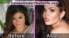 India Reynolds Plastic Surgery Photos #celebsundertheknife #celebs #celebrity #plasticsurgery #celebritysurgery