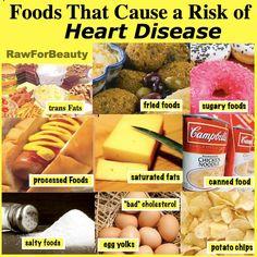 7 Miraculous Useful Ideas: Cholesterol Apple Cider Vinegar hdl cholesterol blood pressure.Ldl Cholesterol Benefits Of ldl cholesterol benefits of.Cholesterol Causes Blood Pressure. Ways To Lower Cholesterol, Cholesterol Lowering Drugs, Healthy Cholesterol Levels, Cholesterol Symptoms, Cholesterol Diet, Non Organic, Salty Foods, Dash Diet