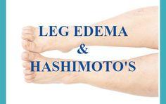 Leg Edema Hashimoto's. Shannon Garrett