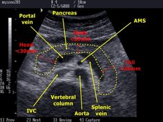 liver measurement ultrasound | Pancreas and its proportions + neighbouring anatomical