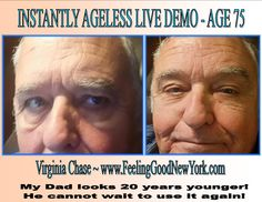 My business partner's father - age 75! Instantly Ageless is a breakthrough product and WOW, I am loving it and making great money as I change lives two minutes at a time! Watch my 2 minute video: www.doyouknowsomeonewithaface.com