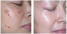 It Removes The Spots From Your Face In Just 3 Nights ! | Fitness and Beauty |