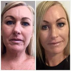 Amazing before and after pic using Luminesce by Jeunesse. Luminesce is the first Adult Stem Cell Derived Skin Care Range with 85% growth factor in the Serum. The results are sensational!