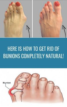 Regular use may help resolve common foot problems like bunion ( hallux varus ) and hammer toe. Health Clear Skin Health Remedies Health Tips Health For women Health Natural Health Tips Healthy Foods To Eat, Healthy Cooking, Healthy Tips, Wellness Tips, Health And Wellness, Wellness Foods, Acupuncture Points Chart, Get Rid Of Bunions, Hammer Toe