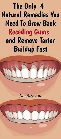 Grow Back Your Receding Gums In No Time With The Help Of These Natural Remedies - Mundhygiene Natural Health Remedies, Herbal Remedies, Cold Remedies, Holistic Remedies, Natural Health Tips, Natural Cures, Grow Back Receding Gums, Reverse Receding Gums, Cooking With Turmeric