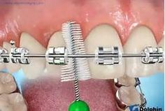 "Using a ""Proxa Brush"" with braces."