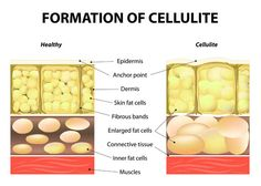 You've tried everything, but you still see it everywhere on your body. Here's how to get rid of cellulite on thighs as well as other critical areas!