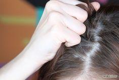 Hair Loss - Cause, Prevention and Treatment Leiden, Regrow Hair Naturally, Dark Spots On Face, Home Remedies For Hair, Hair Scalp, Short Article, Hair Loss, Hair Beauty, Articles