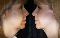Double Chin Removal Methods For A Leaner Face: Double Chin Routines And Facial Massage Toning Treatments For Flaccid Jowls