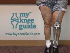 Watch this unique x-ray pictorial of Mary as she goes from severe knee arthritis, through surgery into recovery. She had a significant knock knee deformity w. Knee Replacement Recovery, Knee Replacement Surgery, Joint Replacement, Posture Fix, Bad Posture, Genu Varum, Knee Arthritis, Knee Exercises, Tight Hip Flexors