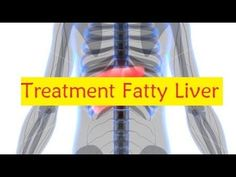 Treatment Fatty Liver